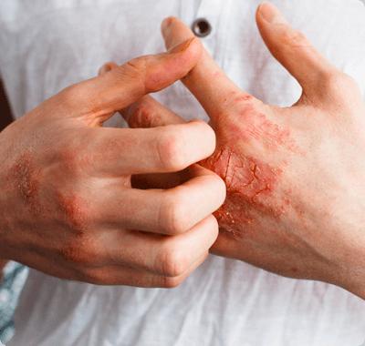 Bechtěrevova nemoc - příznaky